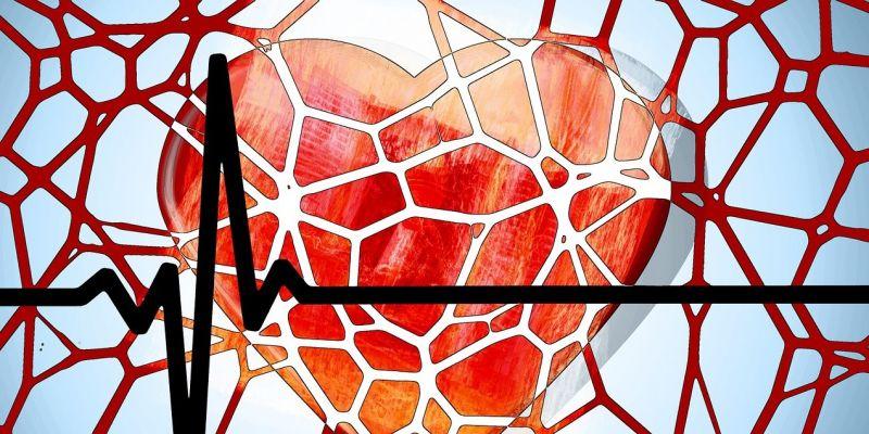 Miocardiopatía