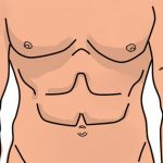 Laparotomía