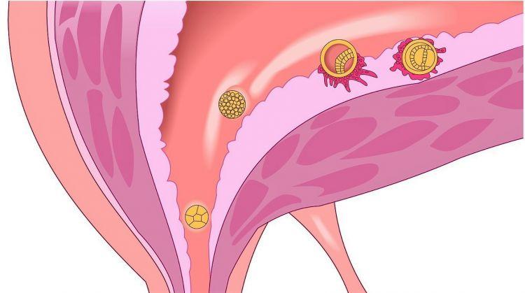 Traquelectomía